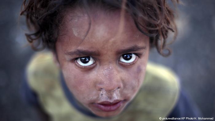 خطر مرگ از گرسنگی جان میلیونها یمنی را تهدید میکند